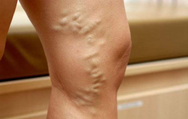 Признаки варикоза и расширения вен на ногах