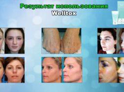 Отбеливание кожи: правила проведения процедуры