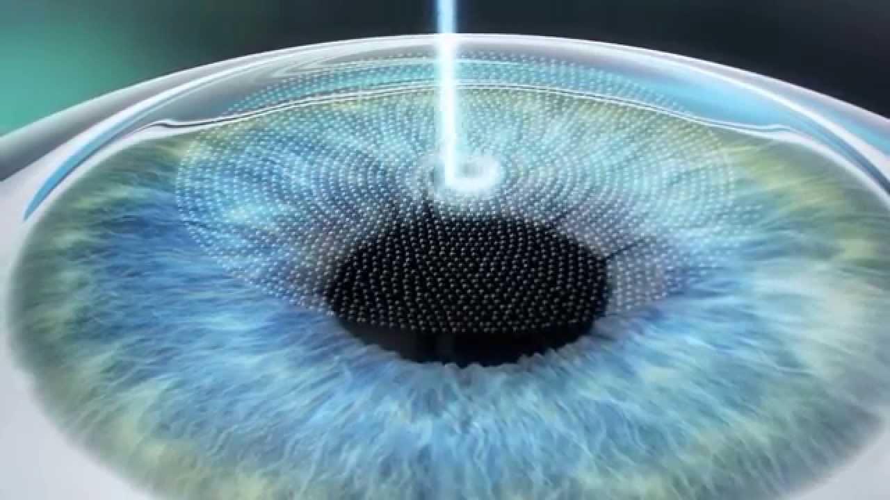 Лазерные операции на глазах