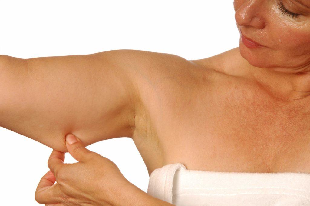 Как похудеть в верхней части руки